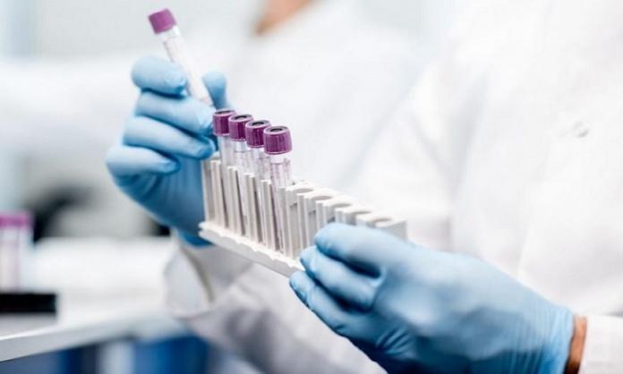 Studio vaccino per coronavirus