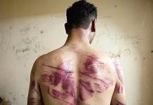 Il del 26 giugno si celebra la Giornata Internazionale per le vittime di tortura