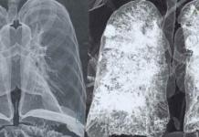 I polmoni dei pazienti post Covid-19 restano compromessi da grosse cicatrici